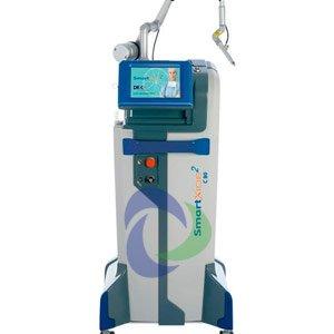 deka-smartxide2 laser